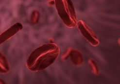 Anemia and Alzheimer's